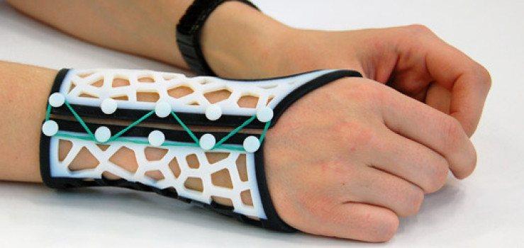 3d printed wrist splints